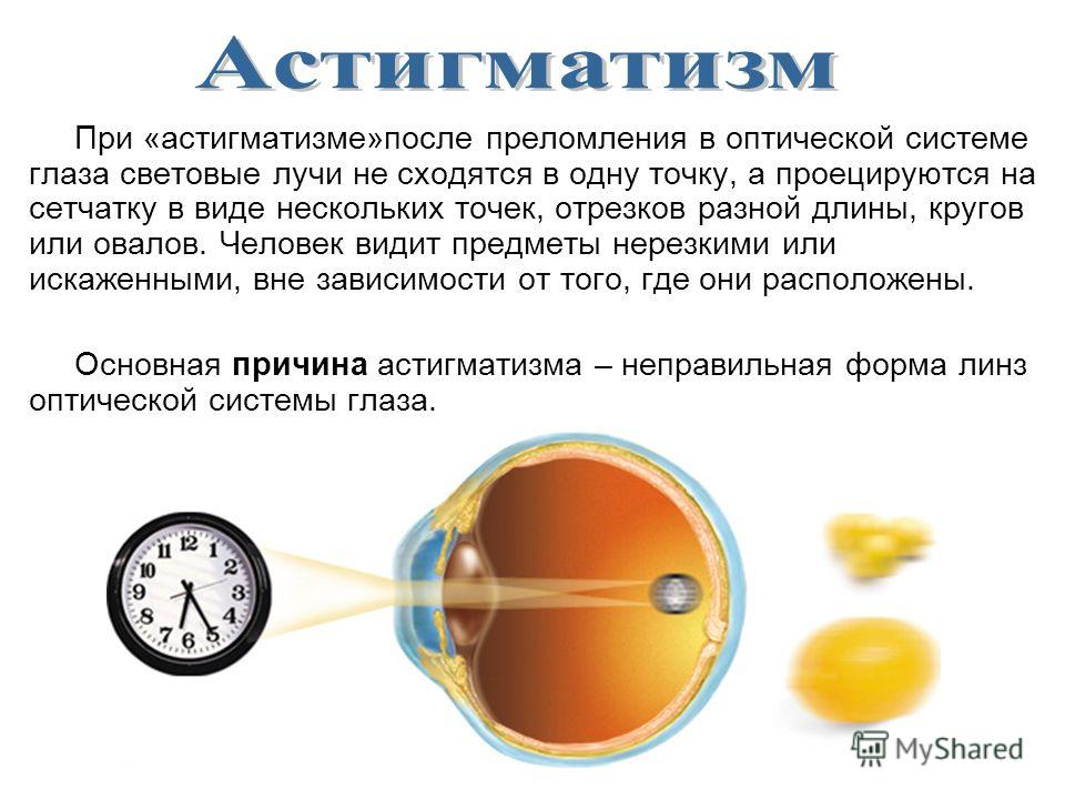 При «астигматизме»после преломления в оптической системе глаза световые лучи не сходятся в одну точку, а проецируются на сетчатку в виде нескольких точек, отрезков разной длины, кругов или овалов. Человек видит предметы нерезкими или искаженными, вне