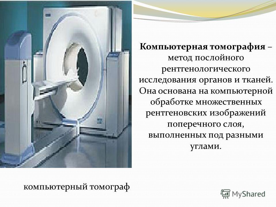 компьютерный томограф Компьютерная томография – метод послойного рентгенологического исследования органов и тканей. Она основана на компьютерной обработке множественных рентгеновских изображений поперечного слоя, выполненных под разными углами.