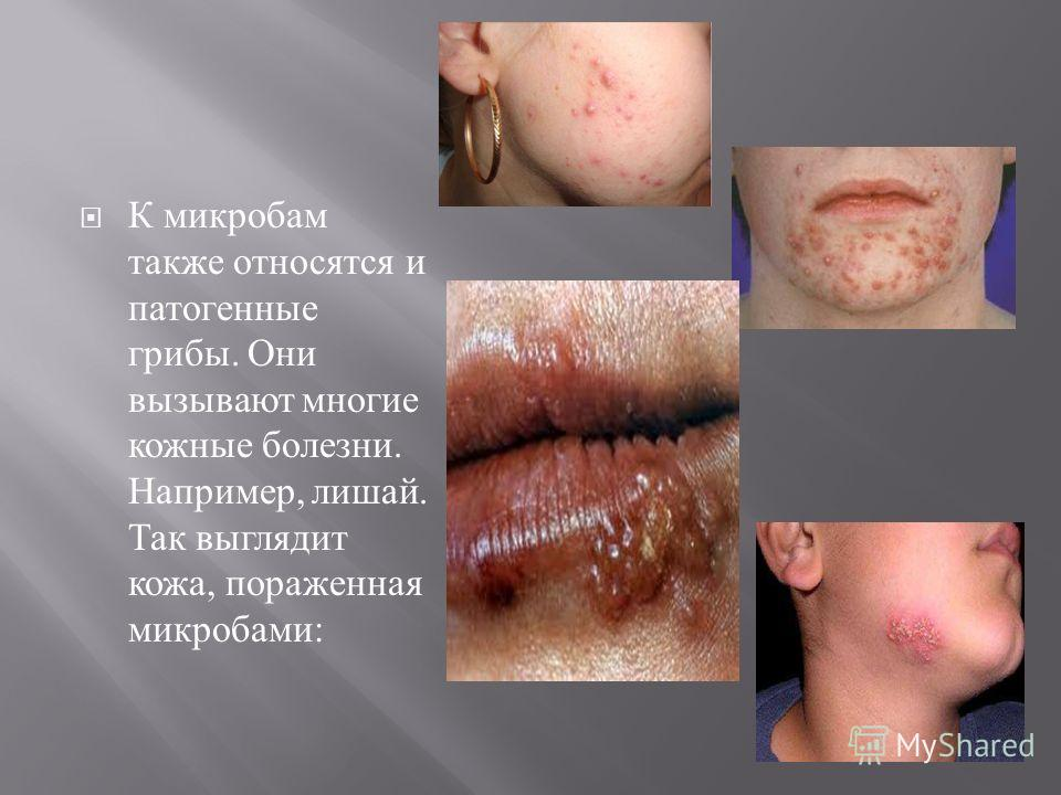 К микробам также относятся и патогенные грибы. Они вызывают многие кожные болезни. Например, лишай. Так выглядит кожа, пораженная микробами :