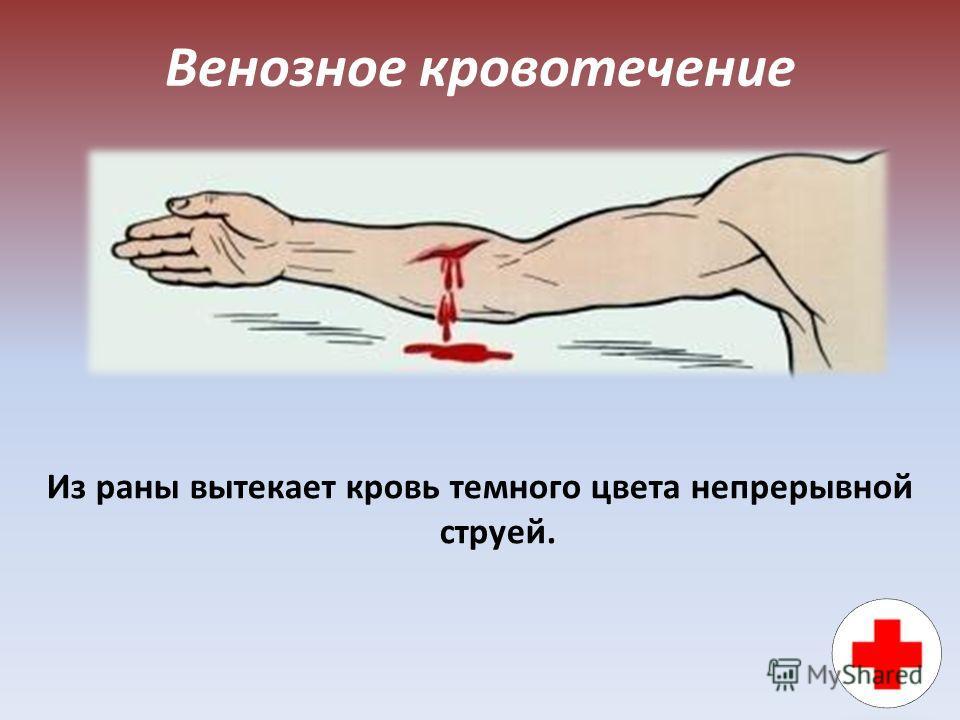 Венозное кровотечение Из раны вытекает кровь темного цвета непрерывной струей.