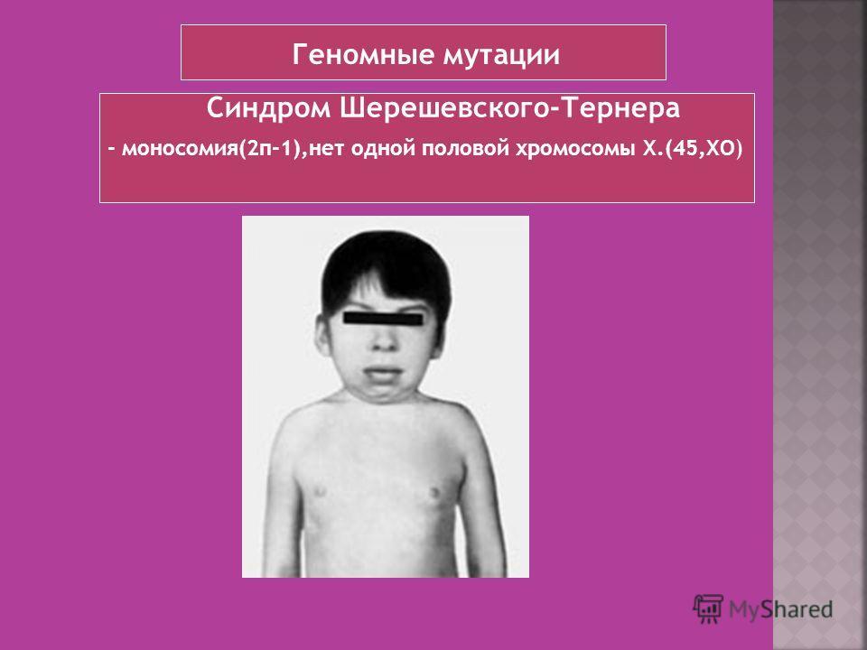 - моносомия(2п-1),нет одной половой хромосомы Х.(45,ХО) Синдром Шерешевского-Тернера Геномные мутации