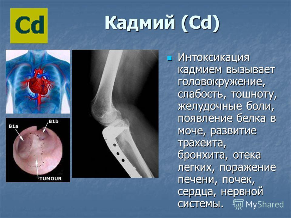К Кадмий (Cd) Интоксикация кадмием вызывает головокружение, слабость, тошноту, желудочные боли, появление белка в моче, развитие трахеита, бронхита, отека легких, поражение печени, почек, сердца, нервной системы. Интоксикация кадмием вызывает головок
