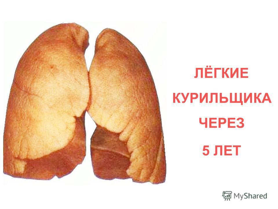 ЛЁГКИЕ КУРИЛЬЩИКА ЧЕРЕЗ 5 ЛЕТ