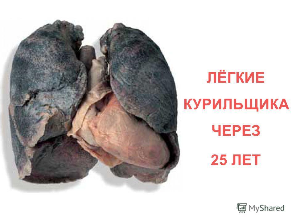 ЛЁГКИЕ КУРИЛЬЩИКА ЧЕРЕЗ 25 ЛЕТ