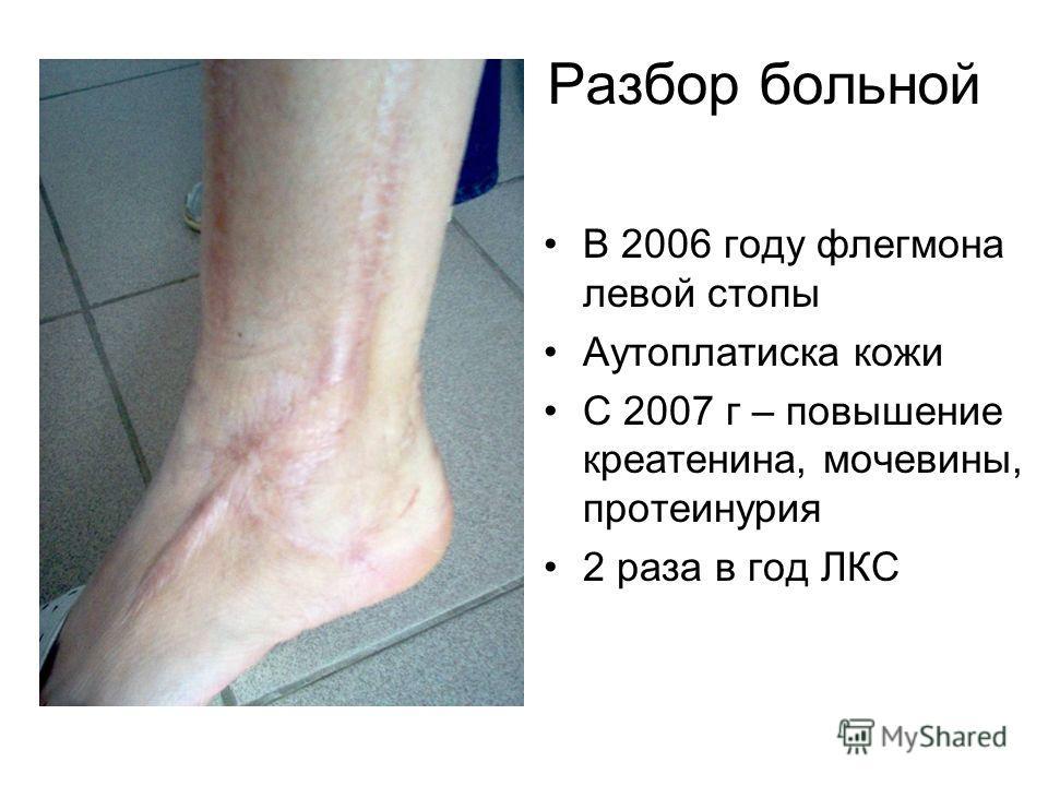 Разбор больной В 2006 году флегмона левой стопы Аутоплатиска кожи С 2007 г – повышение креатенина, мочевины, протеинурия 2 раза в год ЛКС
