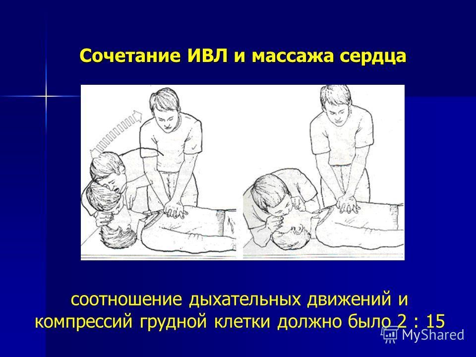 Сочетание ИВЛ и массажа сердца соотношение дыхательных движений и компрессий грудной клетки должно было 2 : 15
