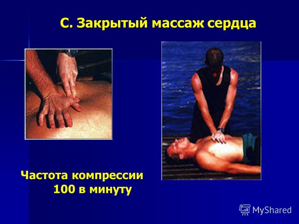 C. Закрытый массаж сердца Частота компрессии 100 в минуту