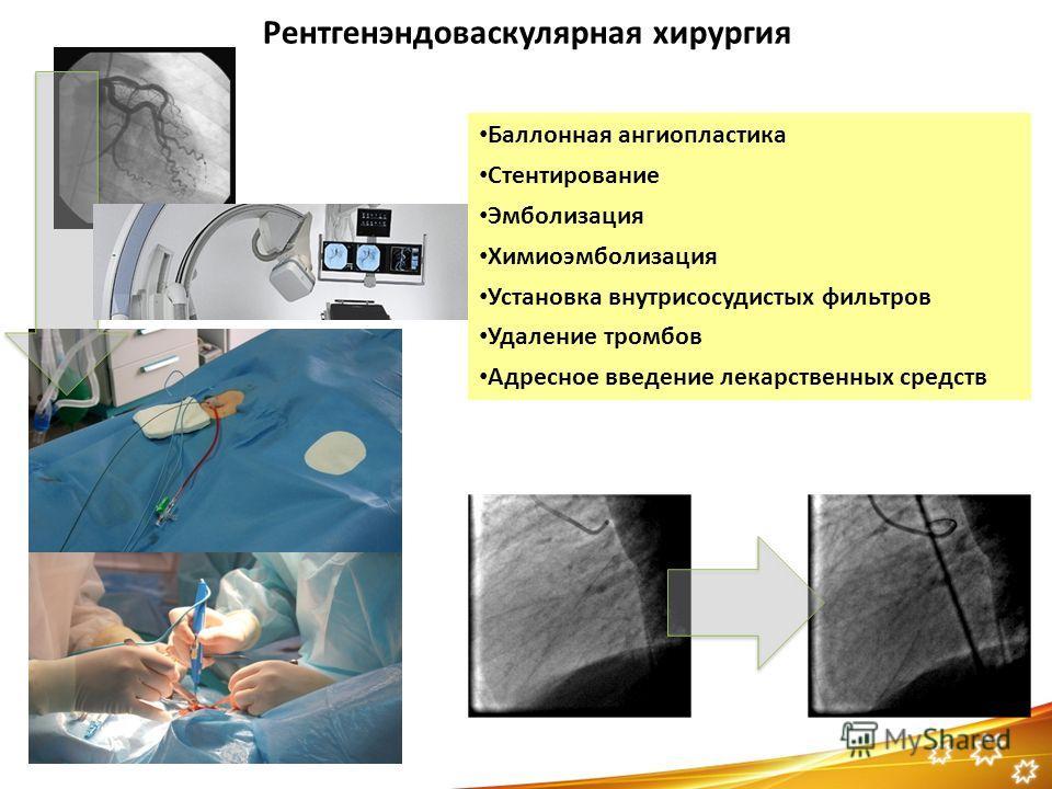 Баллонная ангиопластика Стентирование Эмболизация Химиоэмболизация Установка внутрисосудистых фильтров Удаление тромбов Адресное введение лекарственных средств Рентгенэндоваскулярная хирургия