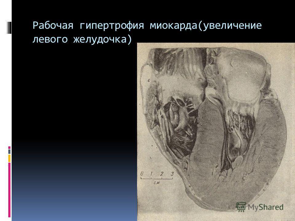 Рабочая гипертрофия миокарда(увеличение левого желудочка)