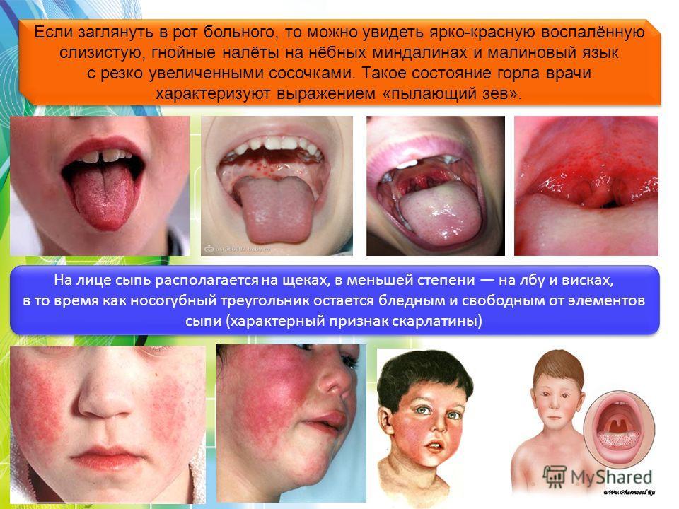 Если заглянуть в рот больного, то можно увидеть ярко-красную воспалённую слизистую, гнойные налёты на нёбных миндалинах и малиновый язык с резко увеличенными сосочками. Такое состояние горла врачи характеризуют выражением «пылающий зев». На лице сыпь