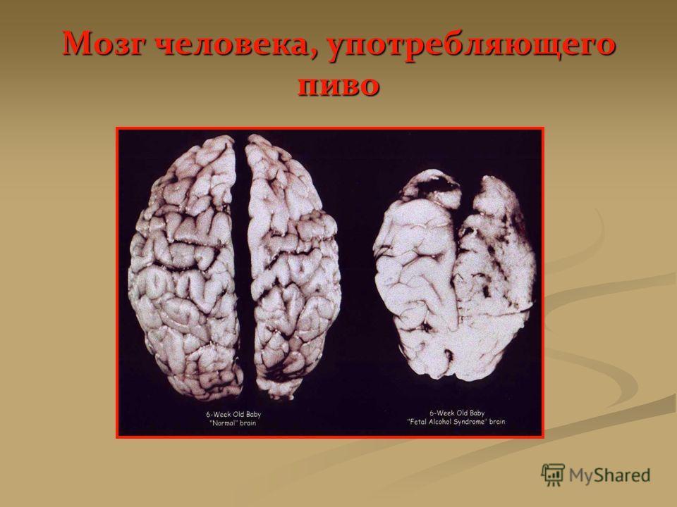 Мозг человека, употребляющего пиво