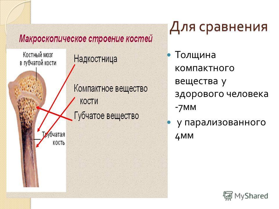 Для сравнения Для сравнения Толщина компактного вещества у здорового человека -7 мм у парализованного 4 мм