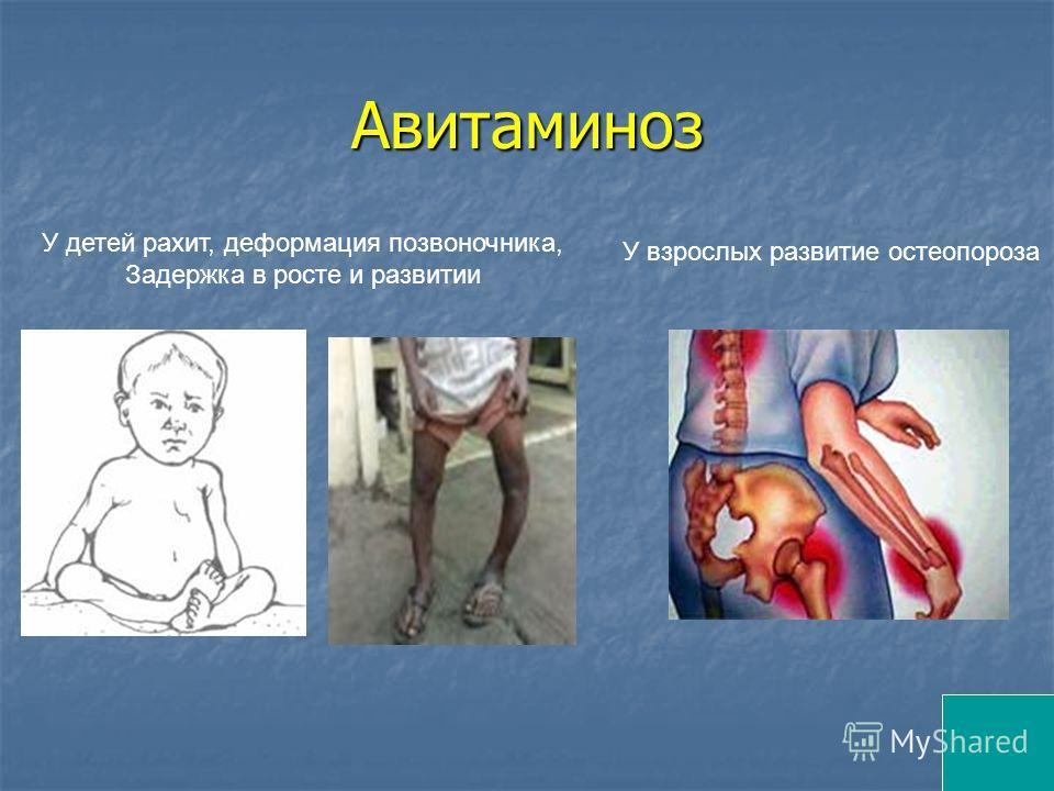 Авитаминоз У детей рахит, деформация позвоночника, Задержка в росте и развитии У взрослых развитие остеопороза