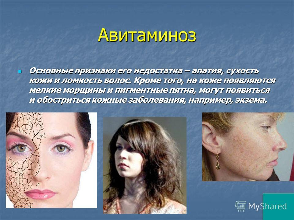 Авитаминоз Основные признаки его недостатка – апатия, сухость кожи и ломкость волос. Кроме того, на коже появляются мелкие морщины и пигментные пятна, могут появиться и обостриться кожные заболевания, например, экзема. Основные признаки его недостатк