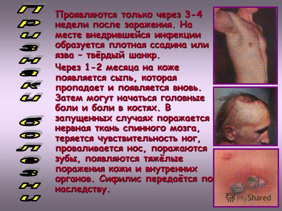 Проявляются только через 3-4 недели после заражения. На месте внедрившейся инфекции образуется плотная ссадина или язва – твёрдый шанкр. Через 1-2 месяца на коже появляется сыпь, которая пропадает и появляется вновь. Затем могут начаться головные бол