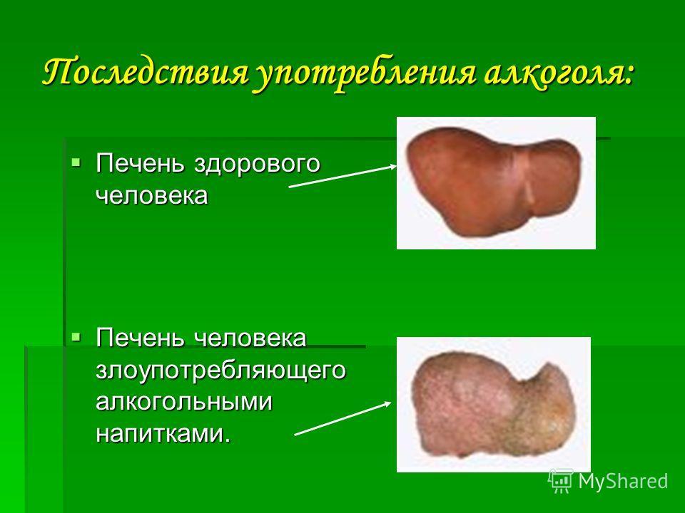 Последствия употребления алкоголя: Печень здорового человека Печень здорового человека Печень человека злоупотребляющего алкогольными напитками. Печень человека злоупотребляющего алкогольными напитками.