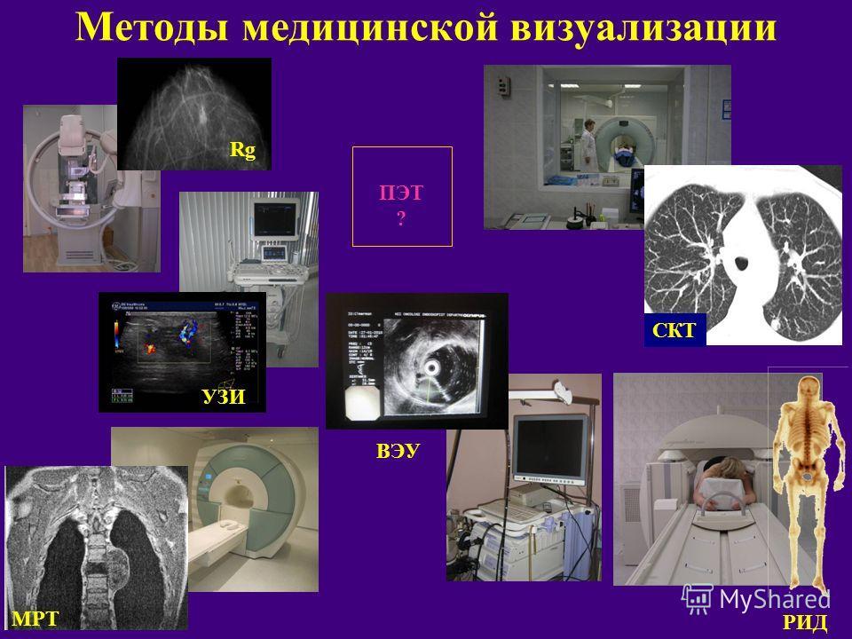 Методы медицинской визуализации МРТ РИД ПЭТ ? Rg УЗИ СКТ ВЭУ