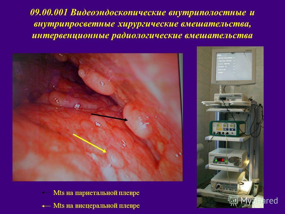 09.00.001 Видеоэндоскопические внутриполостные и внутрипросветные хирургические вмешательства, интервенционные радиологические вмешательства Mts на париетальной плевре Mts на висцеральной плевре