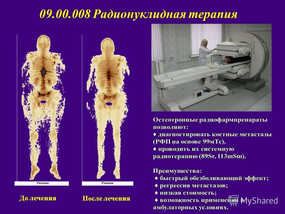 До лечения После лечения 09.00.008 Радионуклидная терапия