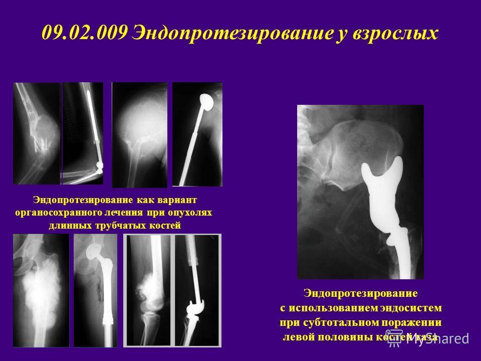 Эндопротезирование как вариант органосохранного лечения при опухолях длинных трубчатых костей Эндопротезирование с использованием эндосистем при субтотальном поражении левой половины костей таза 09.02.009 Эндопротезирование у взрослых