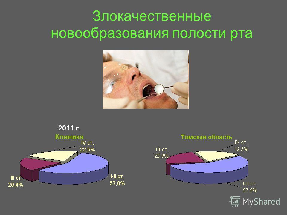 Злокачественные новообразования полости рта