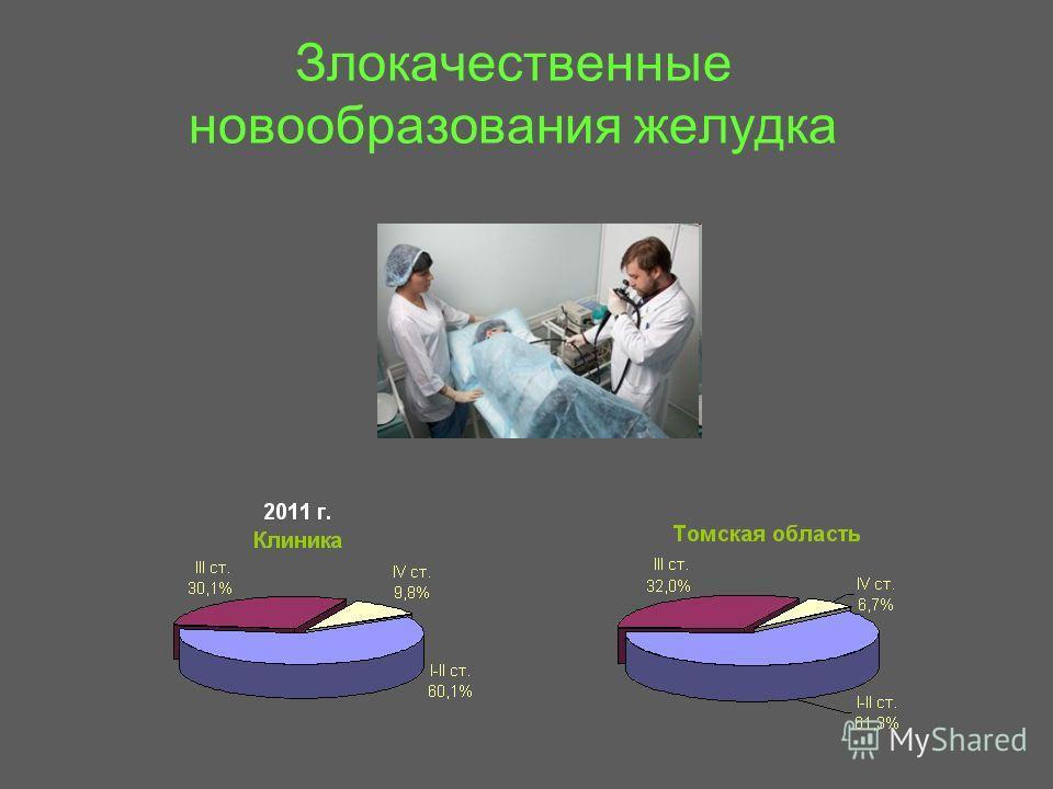 Злокачественные новообразования желудка
