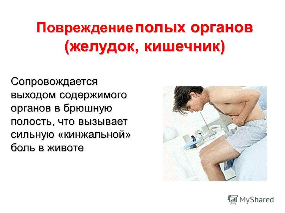 Сопровождается выходом содержимого органов в брюшную полость, что вызывает сильную «кинжальной» боль в животе Повреждение полых органов (желудок, кишечник)