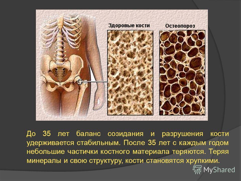 До 35 лет баланс созидания и разрушения кости удерживается стабильным. После 35 лет с каждым годом небольшие частички костного материала теряются. Теряя минералы и свою структуру, кости становятся хрупкими.