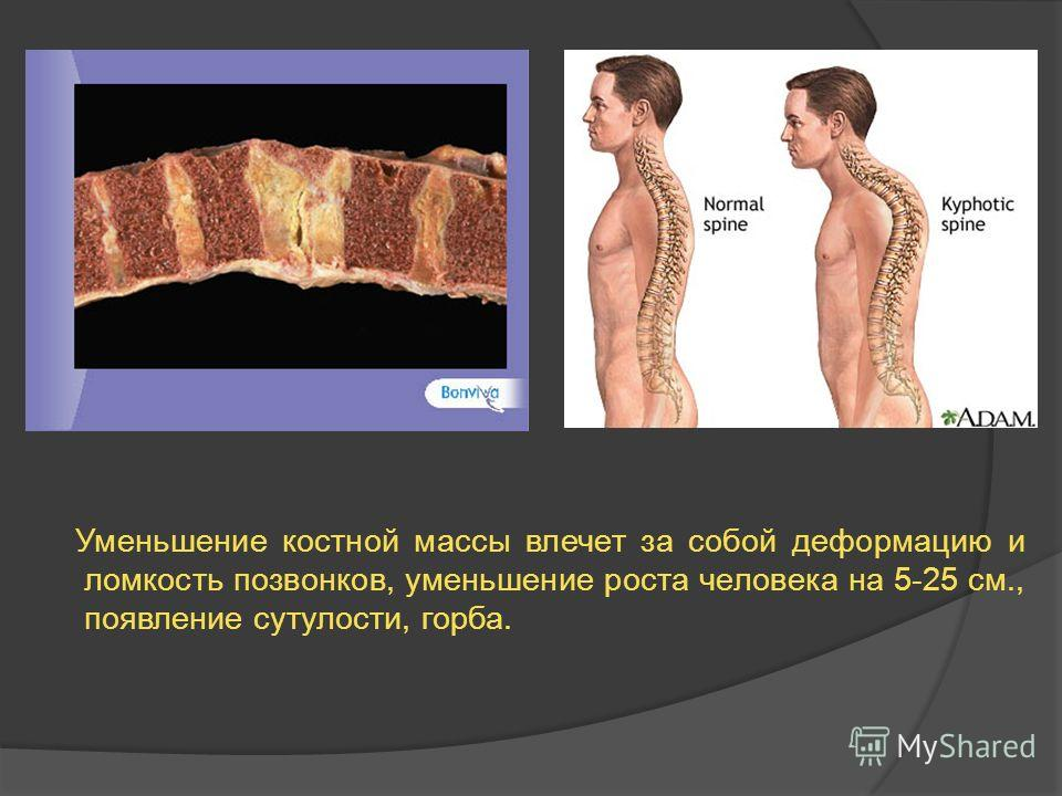 Уменьшение костной массы влечет за собой деформацию и ломкость позвонков, уменьшение роста человека на 5-25 см., появление сутулости, горба.