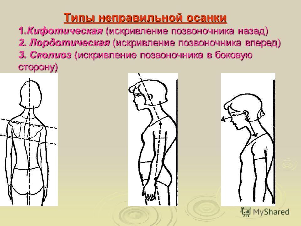 Типы неправильной осанки 1.Кифотическая (искривление позвоночника назад) 2. Лордотическая (искривление позвоночника вперед) 3. Сколиоз (искривление позвоночника в боковую сторону) Типы неправильной осанки 1.Кифотическая (искривление позвоночника наза