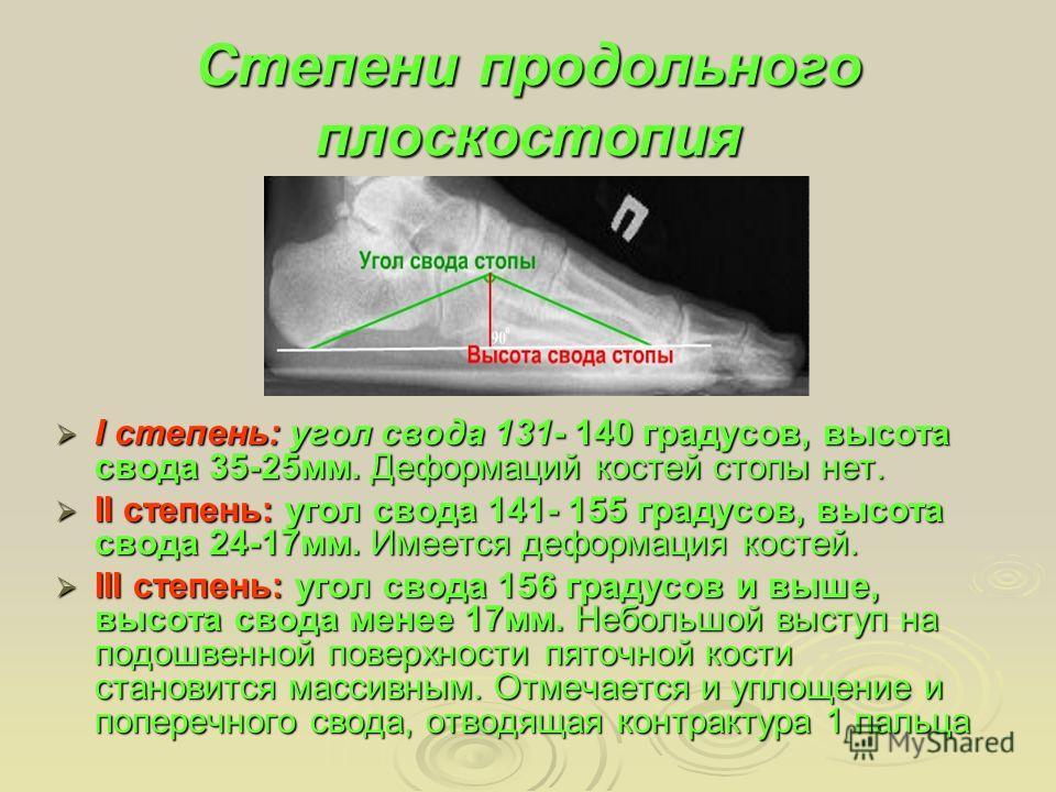 Степени продольного плоскостопия I степень: угол свода 131- 140 градусов, высота свода 35-25мм. Деформаций костей стопы нет. I степень: угол свода 131- 140 градусов, высота свода 35-25мм. Деформаций костей стопы нет. II степень: угол свода 141- 155 г