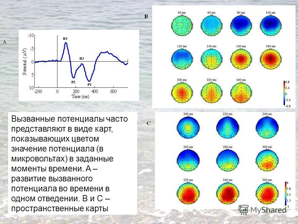 Вызванные потенциалы часто представляют в виде карт, показывающих цветом значение потенциала (в микровольтах) в заданные моменты времени. A – развитие вызванного потенциала во времени в одном отведении. B и C – пространственные карты