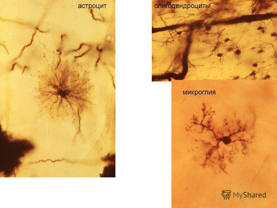 астроцитолигодендроциты микроглия