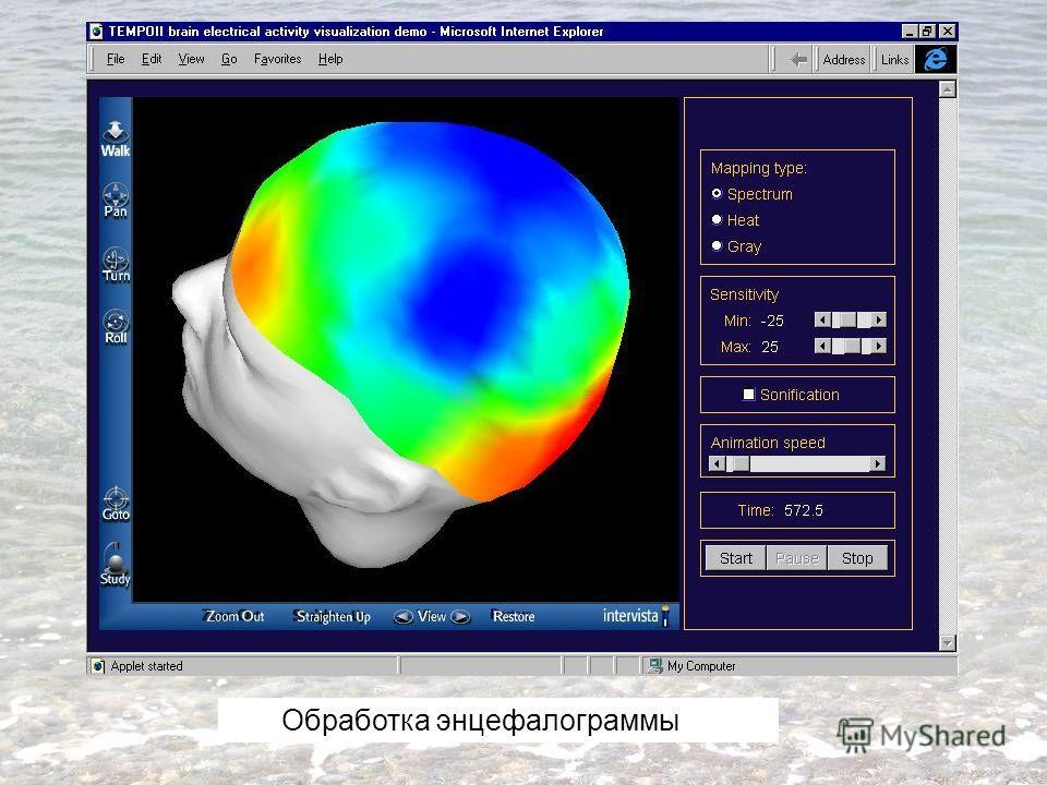 Обработка энцефалограммы