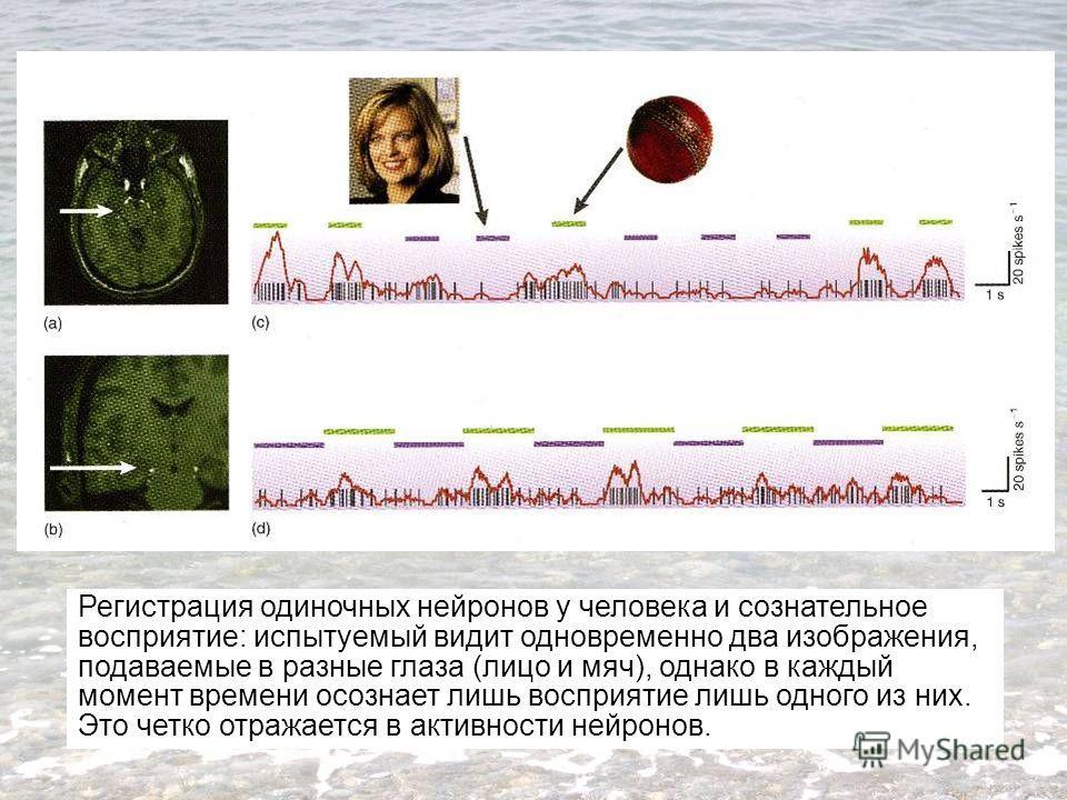 Регистрация одиночных нейронов у человека и сознательное восприятие: испытуемый видит одновременно два изображения, подаваемые в разные глаза (лицо и мяч), однако в каждый момент времени осознает лишь восприятие лишь одного из них. Это четко отражает