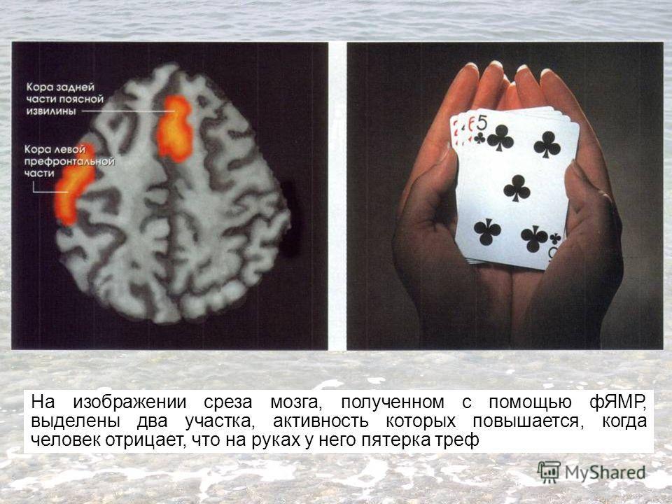 На изображении среза мозга, полученном с помощью фЯМР, выделены два участка, активность которых повышается, когда человек отрицает, что на руках у него пятерка треф