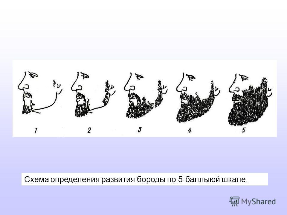 Схема определения развития бороды по 5-баллыюй шкале.