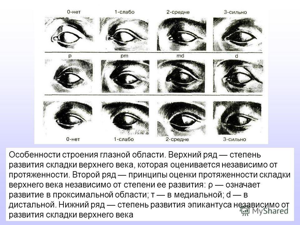 Особенности строения глазной области. Верхний ряд степень развития складки верхнего века, которая оценивается независимо от протяженности. Второй ряд принципы оценки протяженности складки верхнего века независимо от степени ее развития: ρ означает ра
