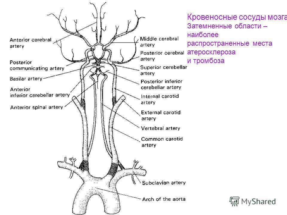 Кровеносные сосуды мозга Затемненные области – наиболее распространенные места атеросклероза и тромбоза