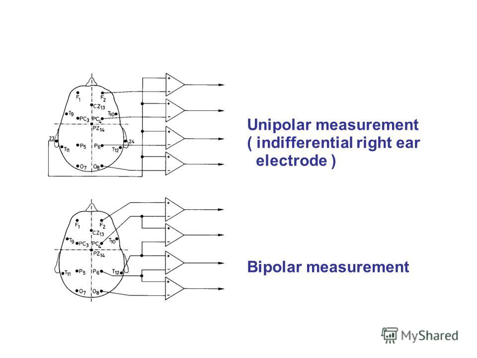 Unipolar measurement ( indifferential right ear electrode ) Bipolar measurement