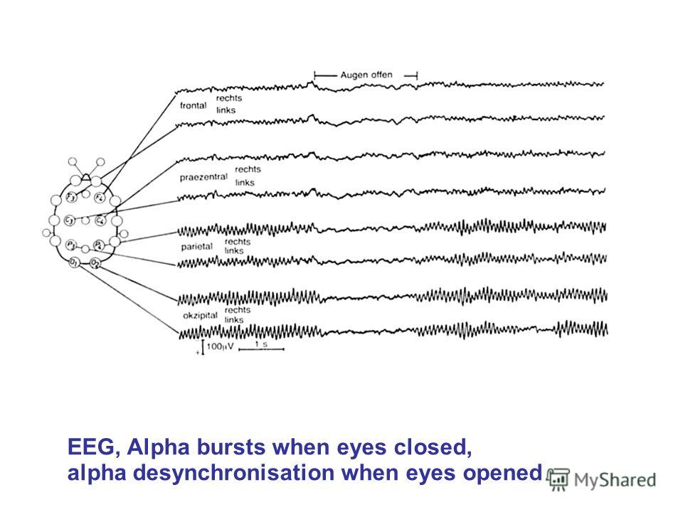 EEG, Alpha bursts when eyes closed, alpha desynchronisation when eyes opened