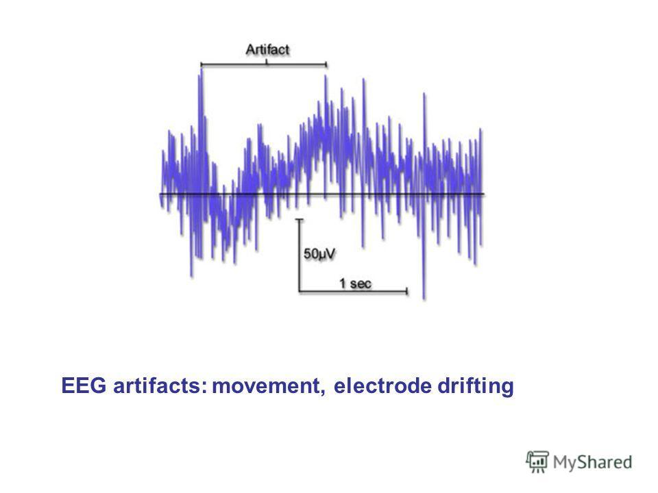EEG artifacts: movement, electrode drifting