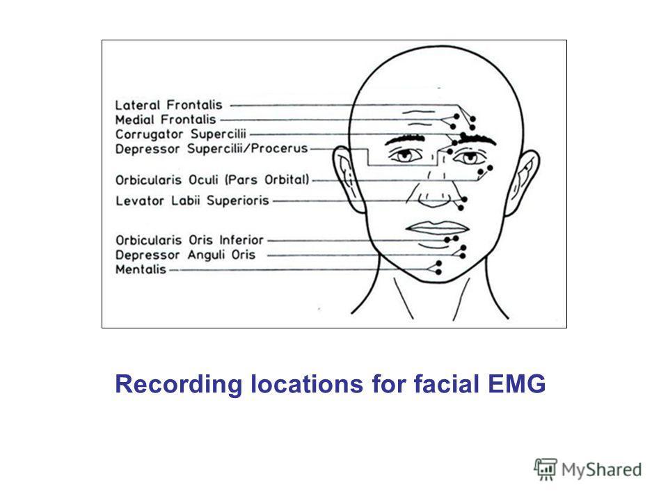 Recording locations for facial EMG