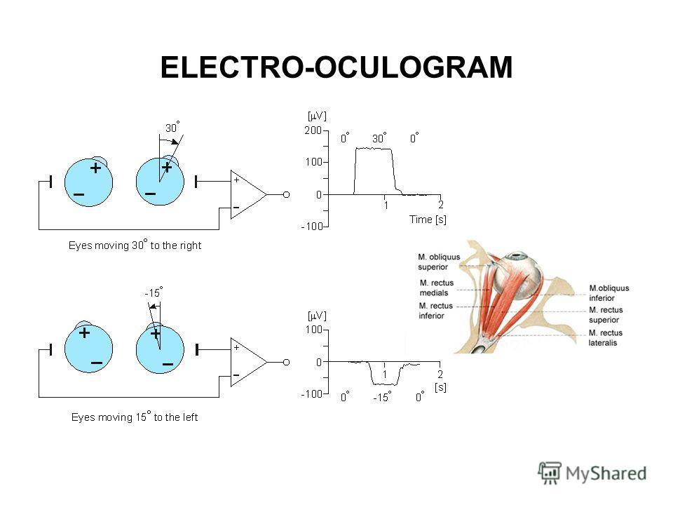 ELECTRO-OCULOGRAM