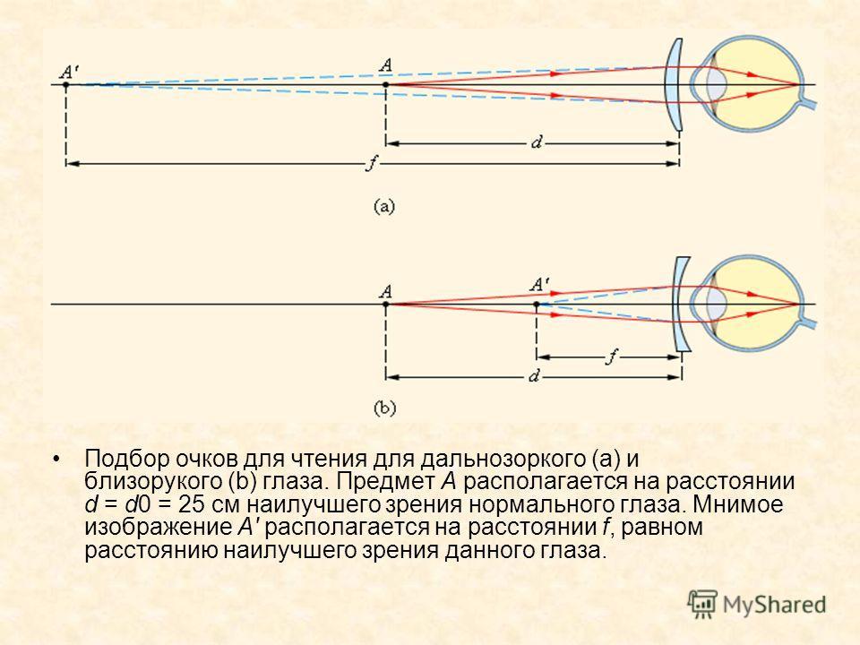 Подбор очков для чтения для дальнозоркого (a) и близорукого (b) глаза. Предмет A располагается на расстоянии d = d0 = 25 см наилучшего зрения нормального глаза. Мнимое изображение A' располагается на расстоянии f, равном расстоянию наилучшего зрения