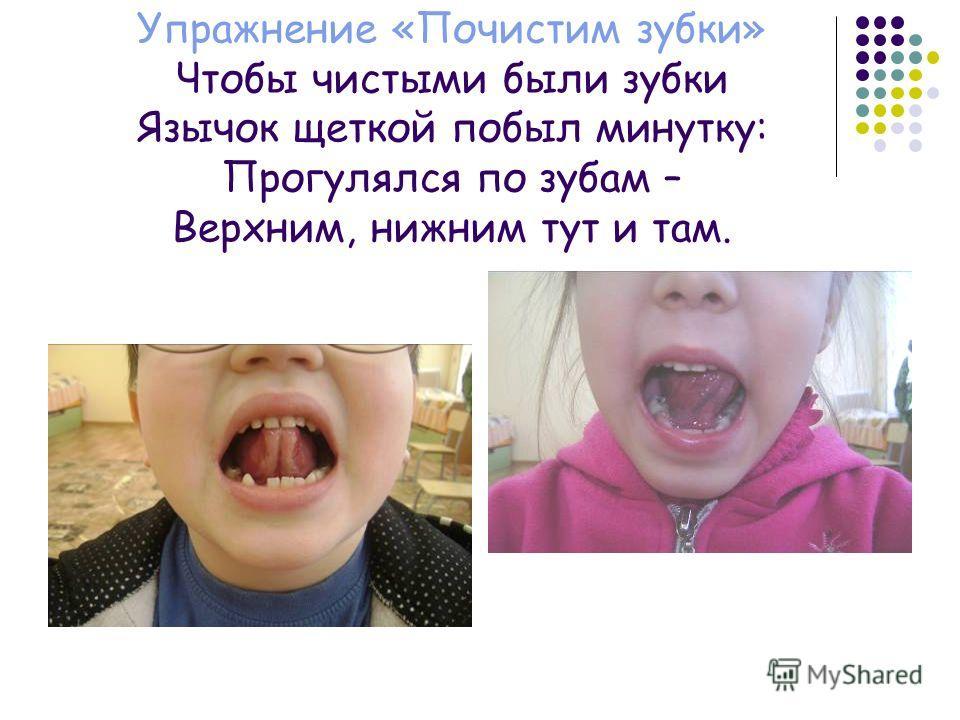 Упражнение «Почистим зубки» Чтобы чистыми были зубки Язычок щеткой побыл минутку: Прогулялся по зубам – Верхним, нижним тут и там.
