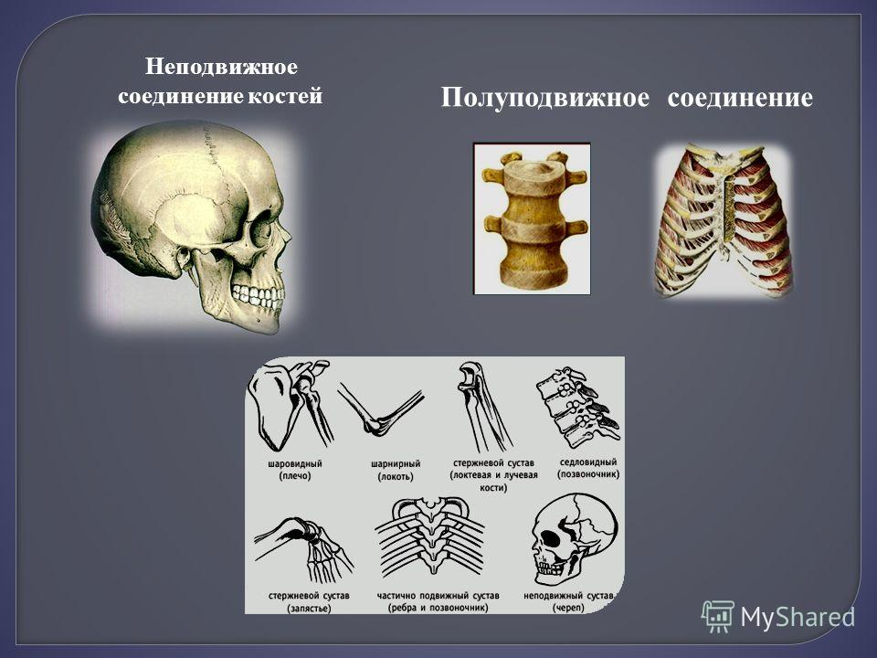 Неподвижное соединение костей Полуподвижное соединение