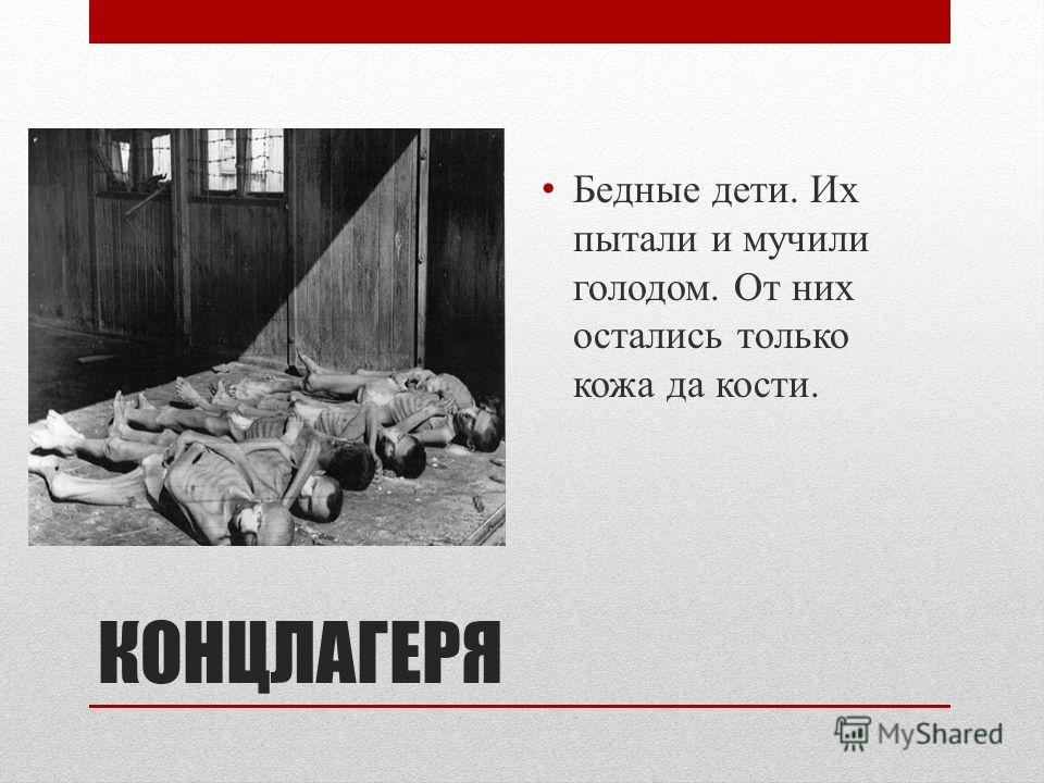 КОНЦЛАГЕРЯ Бедные дети. Их пытали и мучили голодом. От них остались только кожа да кости.