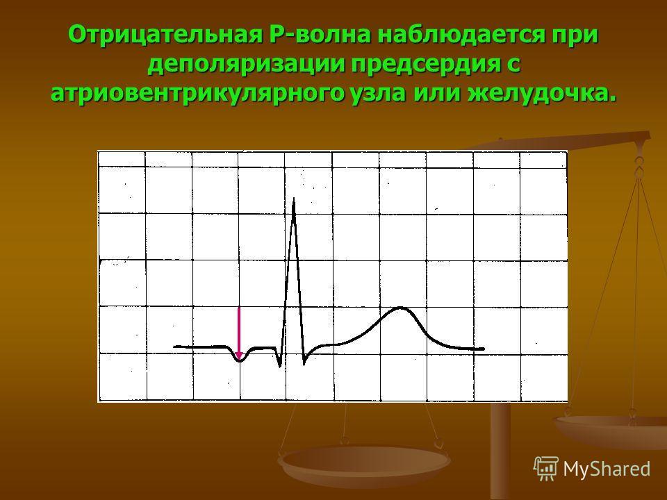 Отрицательная P-волна наблюдается при деполяризации предсердия с атриовентрикулярного узла или желудочка.