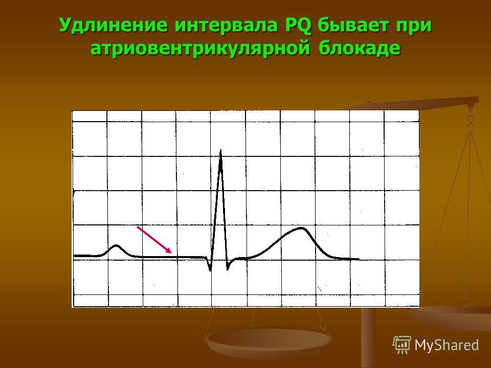 Удлинение интервала PQ бывает при атриовентрикулярной блокаде